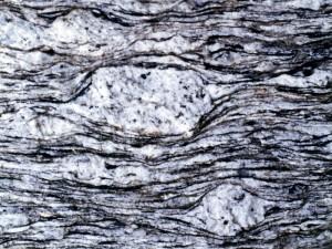 MCTの眼球片麻岩